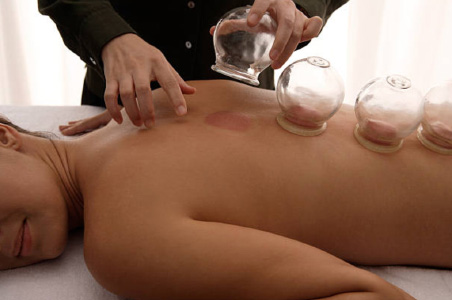 Glass Cupping Therapy Gold Coast
